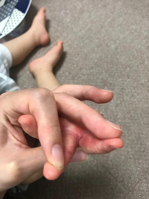 赤ちゃん-手の間の湿疹-08
