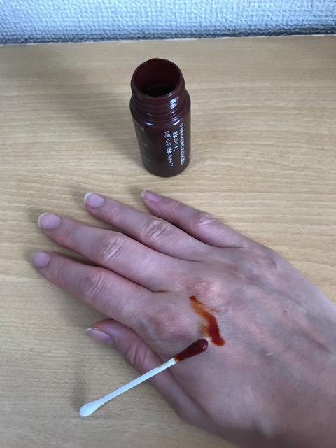赤ちゃん爪の横の膿-8