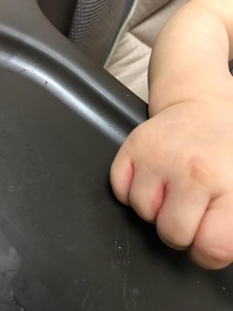 赤ちゃん-手の間の湿疹-02