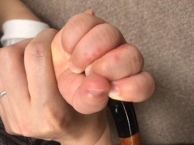 赤ちゃん-手の間の湿疹-05